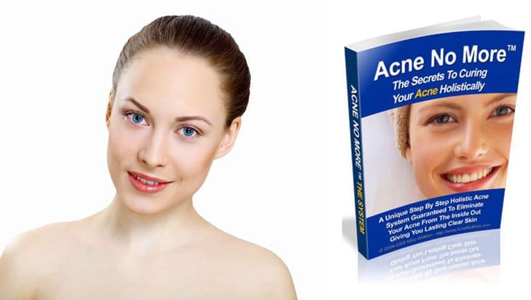 acne no more guide